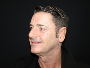 Gary before his Concept Facelift procedure