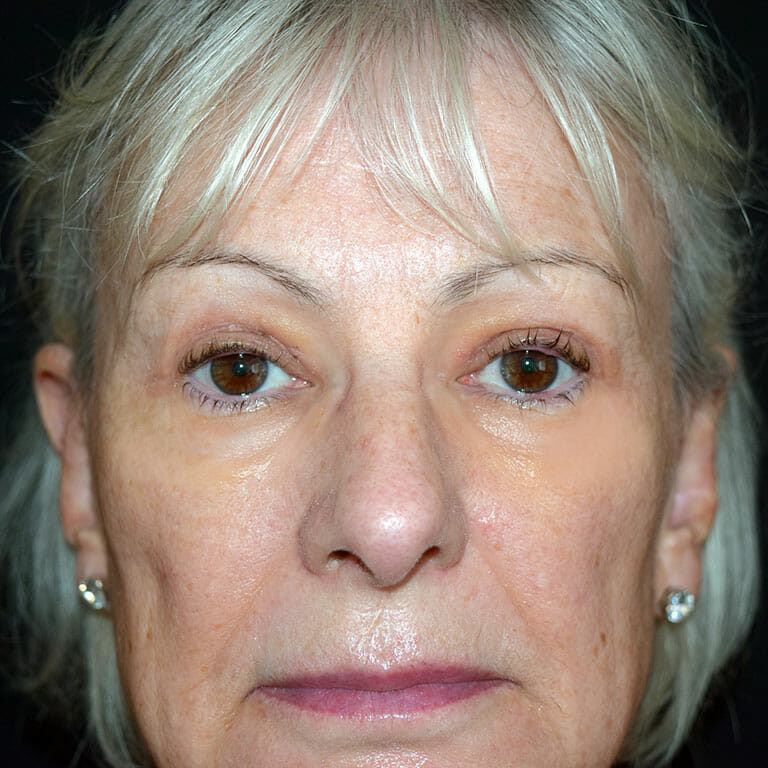 Marion one week after her Eyelid Surgery